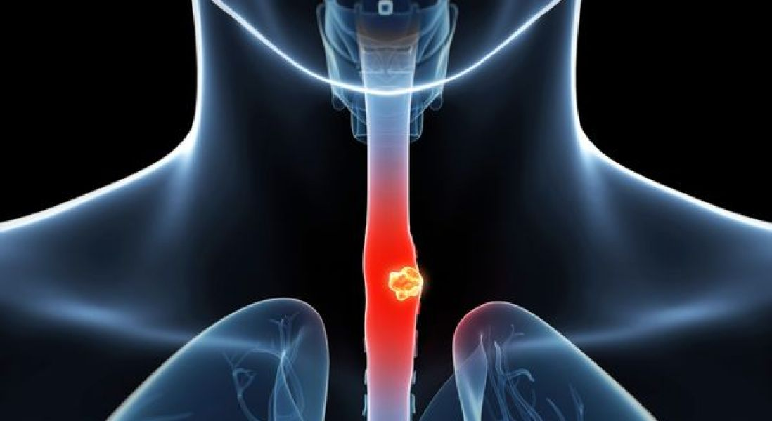 Cell-Collecting Sponge Could Replace Endoscopies for Esophageal Cancer