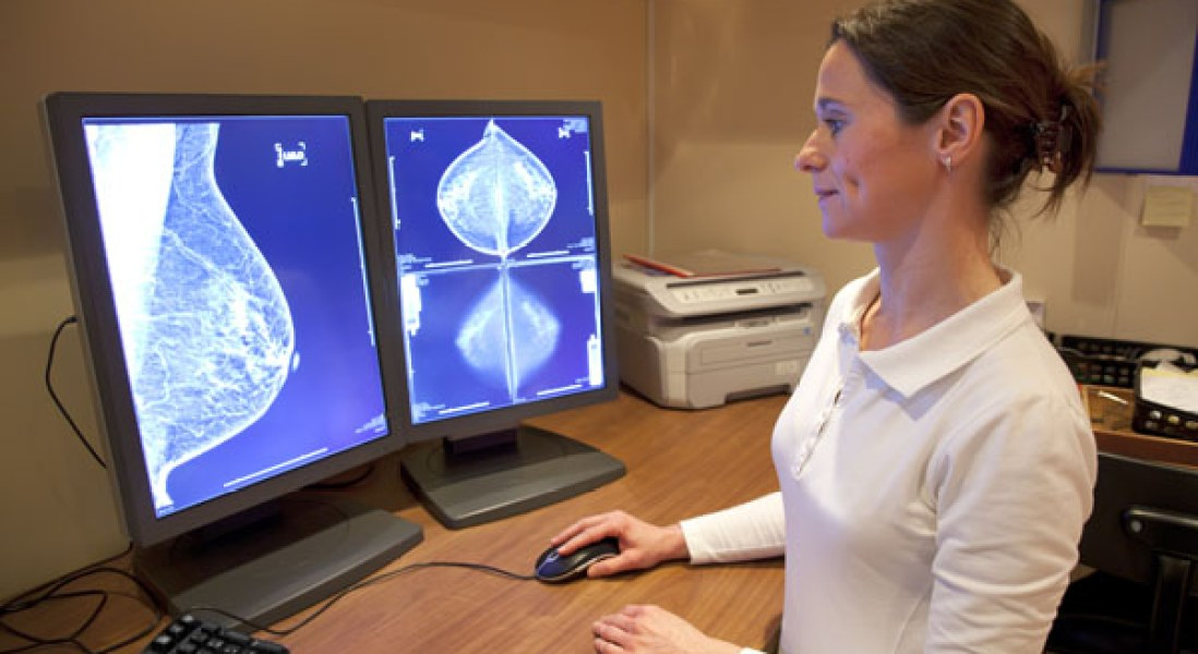Clinical Trial on Effectiveness of Breast Cancer Screening Using 3D Mammography