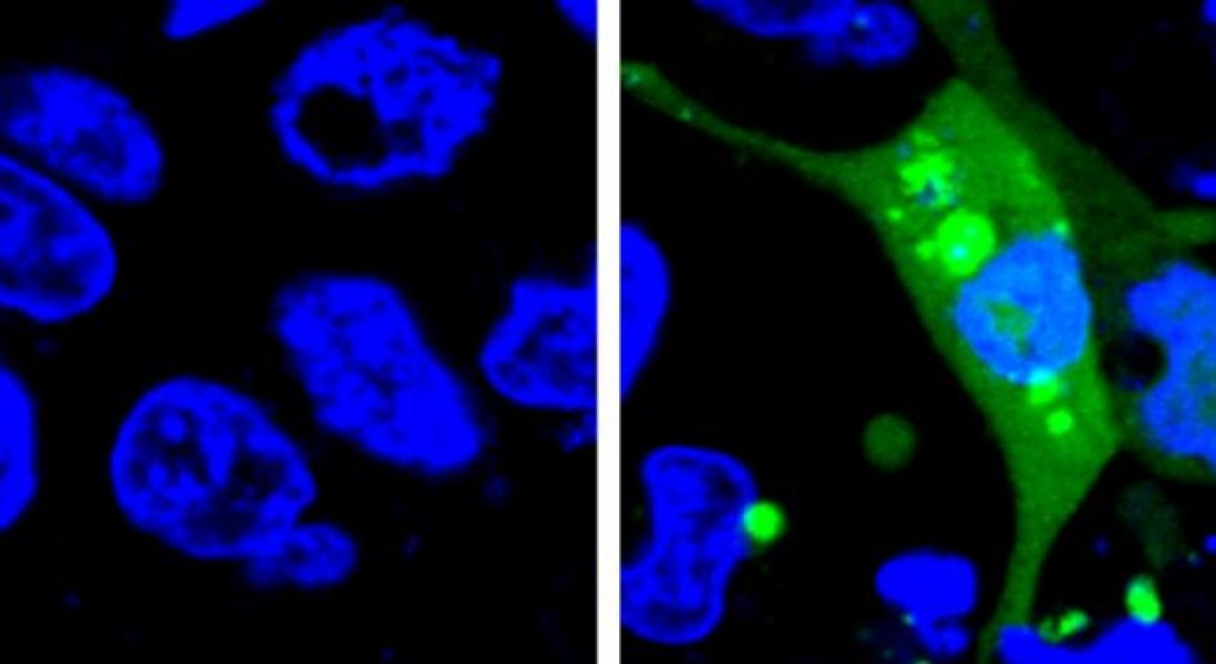 Using Fluorescence to Detect Cellular Stress and Improve Drug Safety