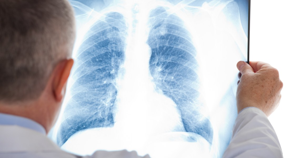 Rapidly-Dividing Stem Cells Show Promise for Regenerative Medicine after Pulmonary Injury