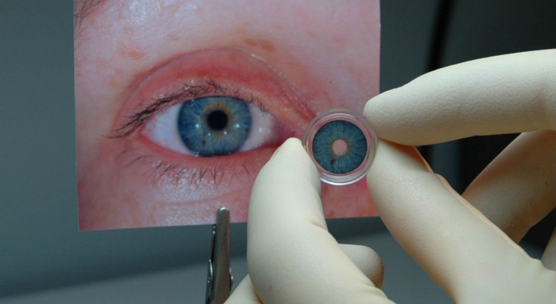 HumanOptics' CustomFlex Artificial Iris Approved as Breakthrough Device