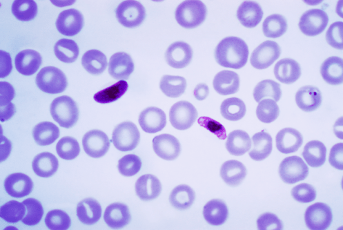 Blood smear with Plasmodium falciparum