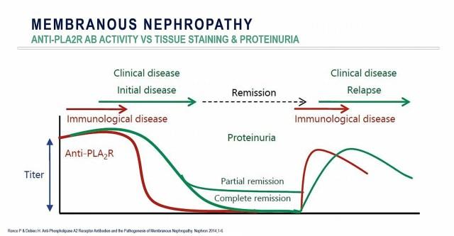 Predicting Membranous Nephropathy Relapse