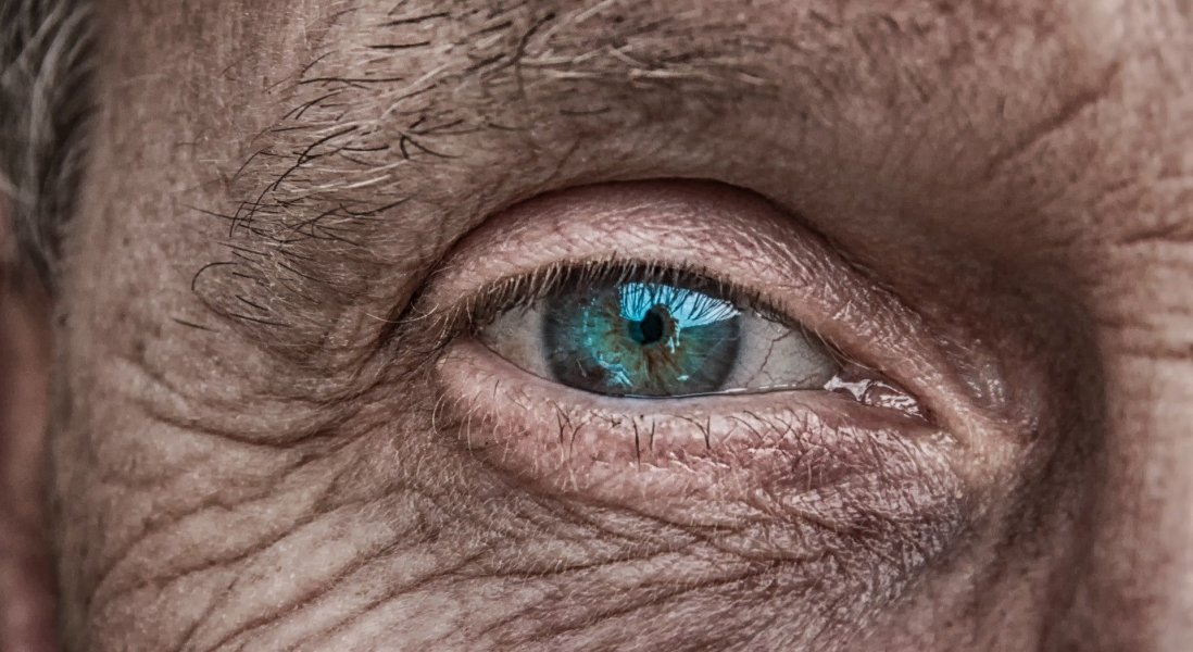 Janssen Acquires Hemera Biosciences' Gene Therapy for Age-Related Macular Degeneration
