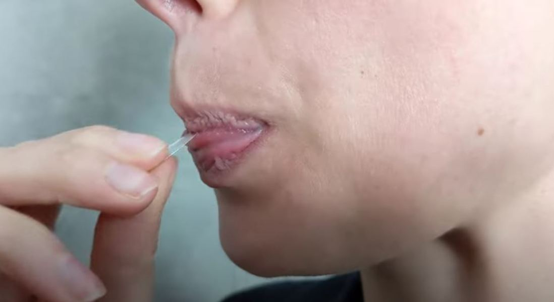 Researchers Develop World's First Saliva Test for Diabetes