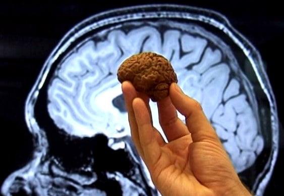 Chocolate-concentracao-Cerebro