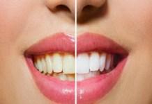 Dicas para clarear os dentes em casa naturalmente