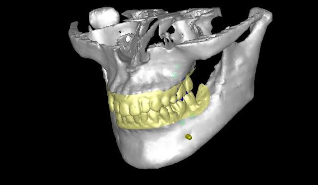 CTシュミレーション画像