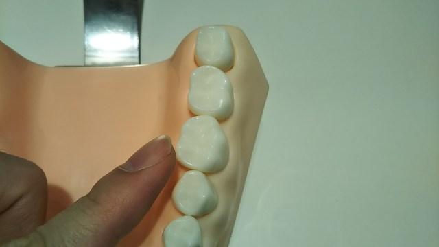 奥歯の歯と歯の間
