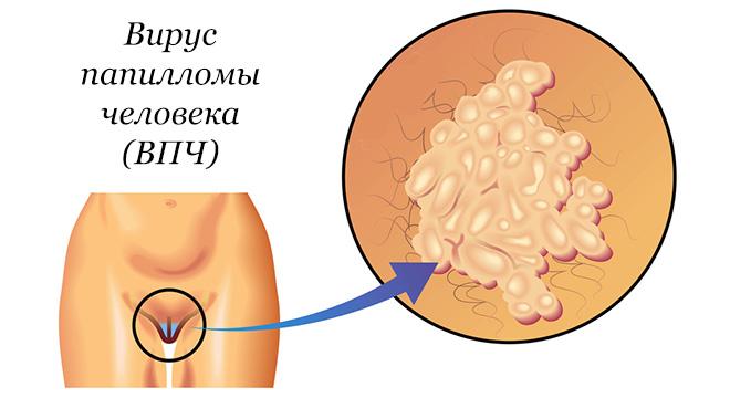 polyoxydonium condyloma