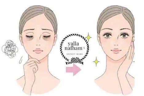 طرق علاج الهالات السوداء تحت العين طبيا