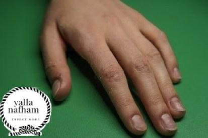 طرق ازالة الجلد الميت من اليدين