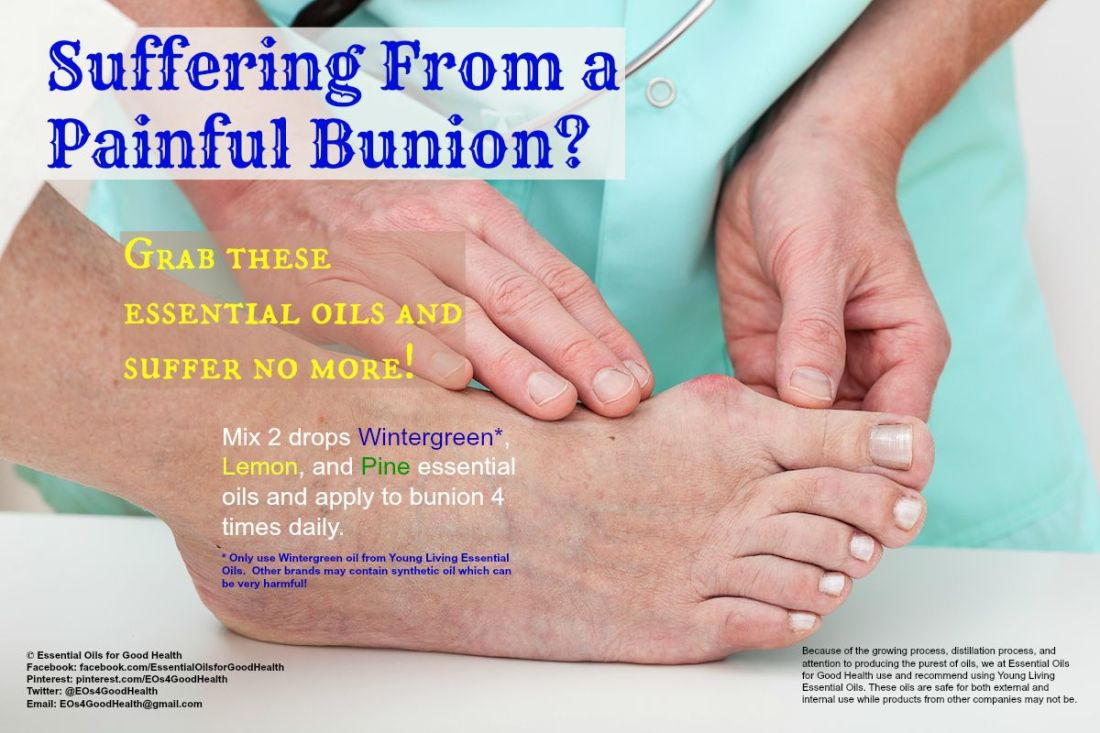 Bunions can be very painful and damaging to the feet here