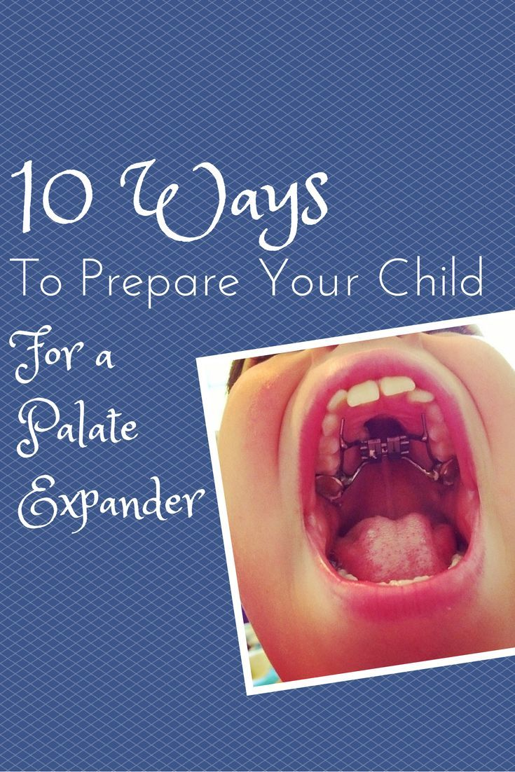 10 ways to prepare your child for a palate expander