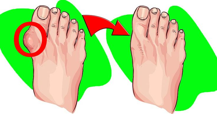 5 remedies how to reduce bunion size naturally receding