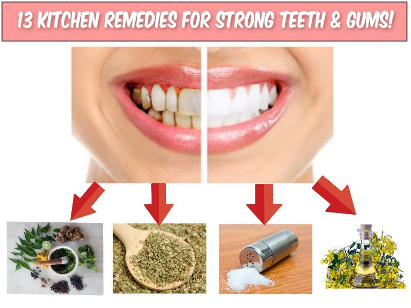 how to make your teeth stronger naturally