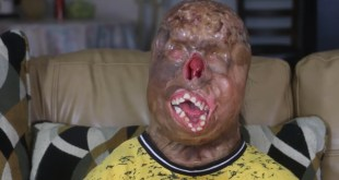 This Teenager Survived Severe Burns... Doctors Say He's a Miracle
