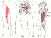 変形性膝関節症の予防