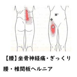 坐骨神経痛・ぎっくり腰・椎間板ヘルニア