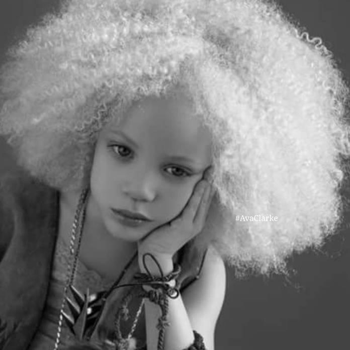 Супер-модель Ава Кларк - девочка альбинос покорила весь мир