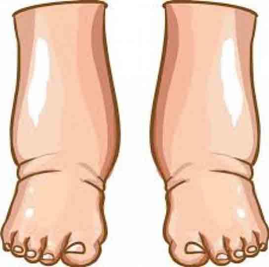 Bacaklarda Neden Şişme Olur ve Çözüm Yolları Nelerdir?