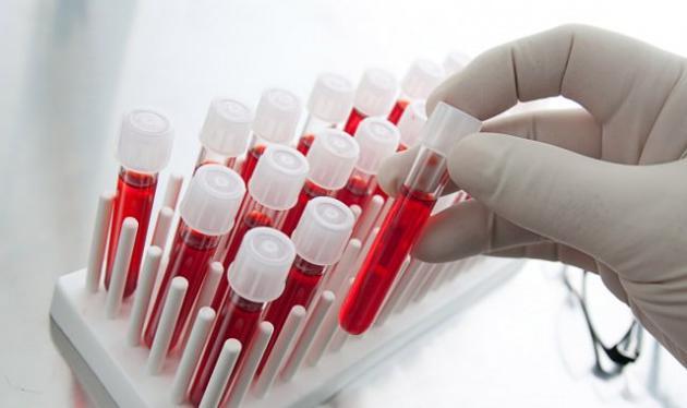 kan-grubu-kansizlik