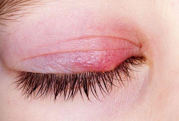 Göz Arpacık Tedavisi ve Şalazyon Tedavisi Nasıl Yapılır?