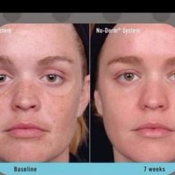 Galvanic Face Spa