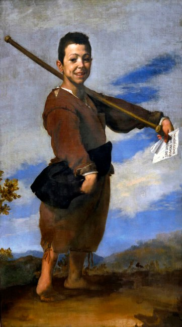Painting showing boy standing, aged approximately 7 years old wearing earth coloured clothes in front a bright and cloudy background. The boy is stood sideways on with a crutch over his left shoulder. On closer inspection you can see the boy has a club foot and the arms are shown extended at the elbows, with bent wrists. These are all typical presentations of Arthrogryposis.