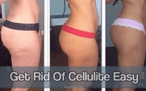 Get rid of cellulite Easy