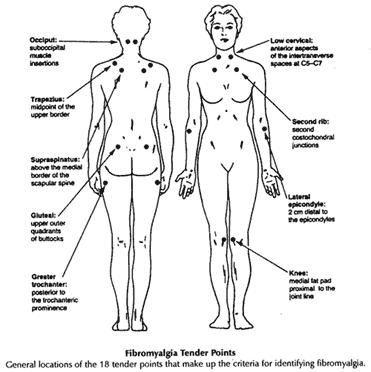 fibromyalgia-371x372.png