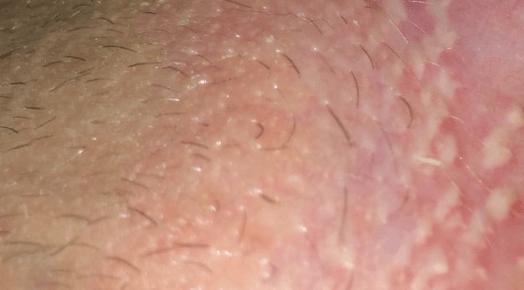 Из-за чего на половых губах появляются язвочки? – всё о ...