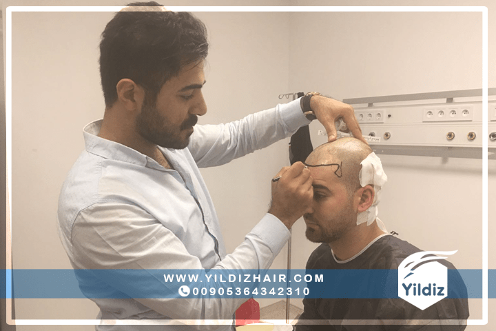 نتائج عمليات زراعة الشعر في تركيا - يلدزهير - 4 1