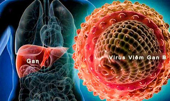 10 điều bạn cần biết về bệnh Viêm Gan B 10 dieu can biet ve benh viem gan b viem gan sieu vi b