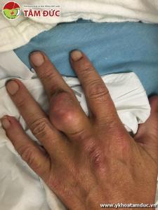 Một số hình ảnh biến chứng của bệnh gút (bệnh gout) bien chung benh gut bien chung benh gout 3ss