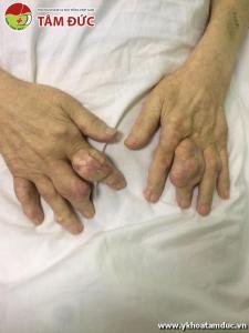 Một số hình ảnh biến chứng của bệnh gút (bệnh gout) bien chung benh gut bien chung benh gout 4ss
