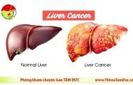 Ung thư gan - Có thể chữa được nếu phát hiện sớm