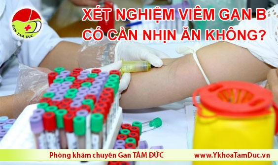 Xét nghiệm viêm gan B có cần nhịn ăn không