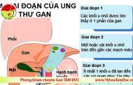 [Infographic] Các giai đoạn của bệnh ung thư gan