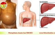 Xơ gan cổ trướng - Triệu chứng, chẩn đoán và điều trị