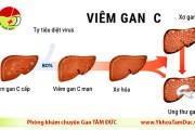 Các giai đoạn của viêm gan C