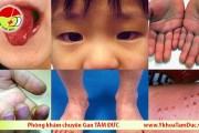 Trẻ nhiễm COVID-19 có triệu chứng giống bệnh Kawasaki gây bệnh tim ở trẻ em
