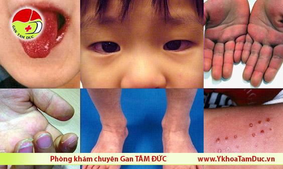 Trẻ nhiễm COVID-19 có triệu chứng giống bệnh Kawasaki gây bệnh tim ở trẻ em benh covid 19 benh kawasaki