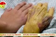 Các bệnh về gan thường gặp ở người cao tuổi