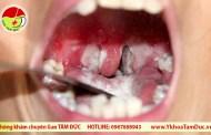 Các biến chứng của bệnh bạch hầu