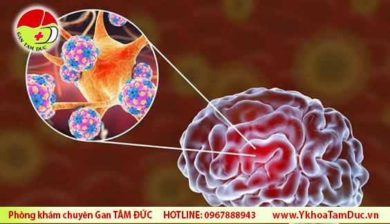 SARS-CoV-2 virus brain damage virus covid19 tan cong nao y khoa tam duc