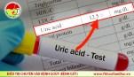 acid uric co phai nguyen nhan benh gut
