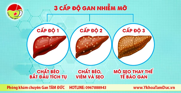 3 cap do gan nhiem mo fatty liver level