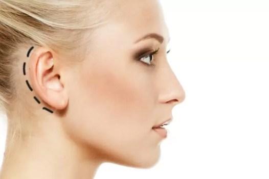 تصغير الأذن في تايلند