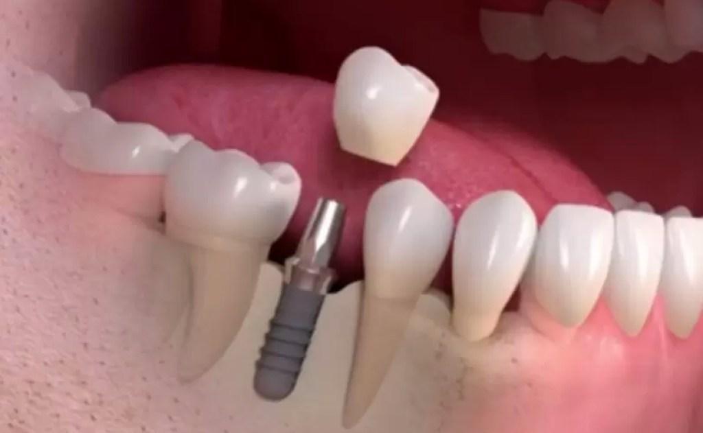 عملية زراعة الاسنان في تايلند